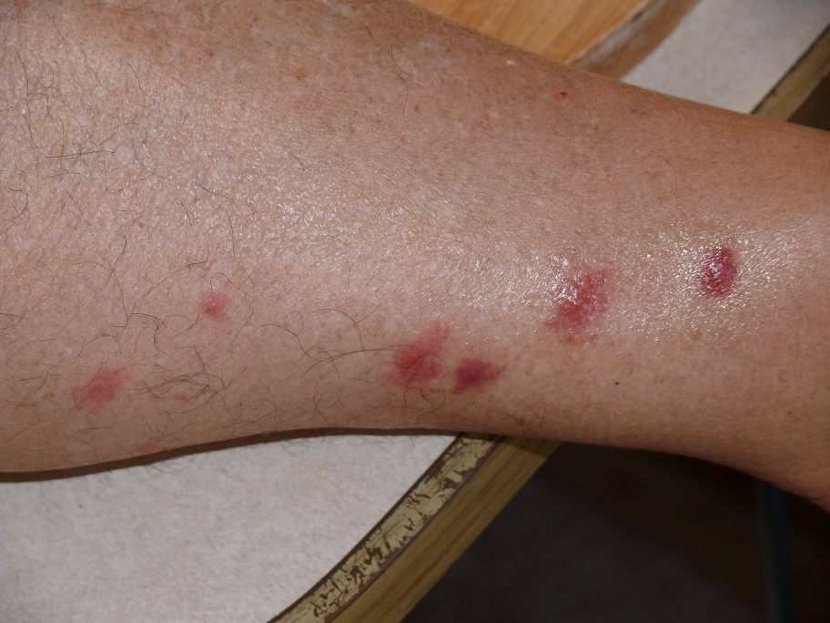 Sand fleas bites